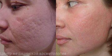 До и после фракционного фототермолиза
